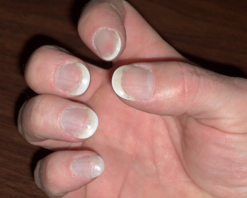 Crazy Glue On Nails Best Nail Designs 2018